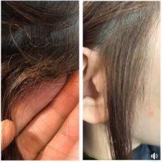 ビビリ毛を直せる技術があります。